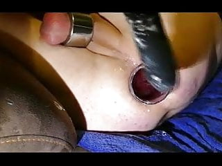 Right! porn rectal speculum and