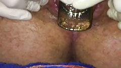 6cm Plug Play with small First Time Prolapse
