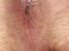 Wet nasty farts