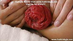 Anal balls & prolapse Hotkinkyjo 2014 summer fun