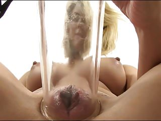 When girls pumped pussy 1