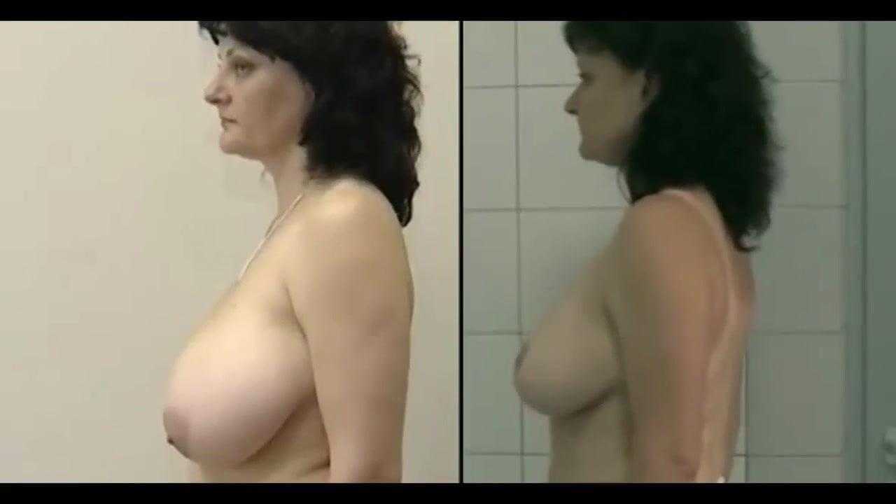 amateur porn reduction Breast