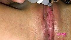 Euroslut's Best Clitoris Enlargement Medication Megadoses