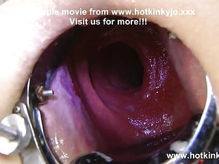 Sexy pirate Xo speculum deep insertion & belly bulge HKJ