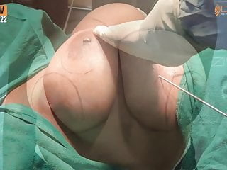 Big Breasts Real Indian Wifes Patient to Doctor HD