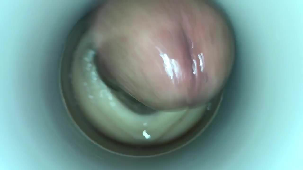 artificial-insemination-with-head-defected-sperm-male-g-spot-sexual-position