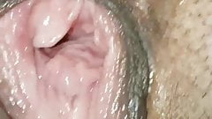 broken vagina gaping close-up
