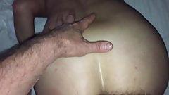anal #20