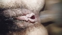 hairy Dirty Anal Close up