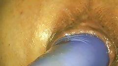 Gaped Hole's Thumb