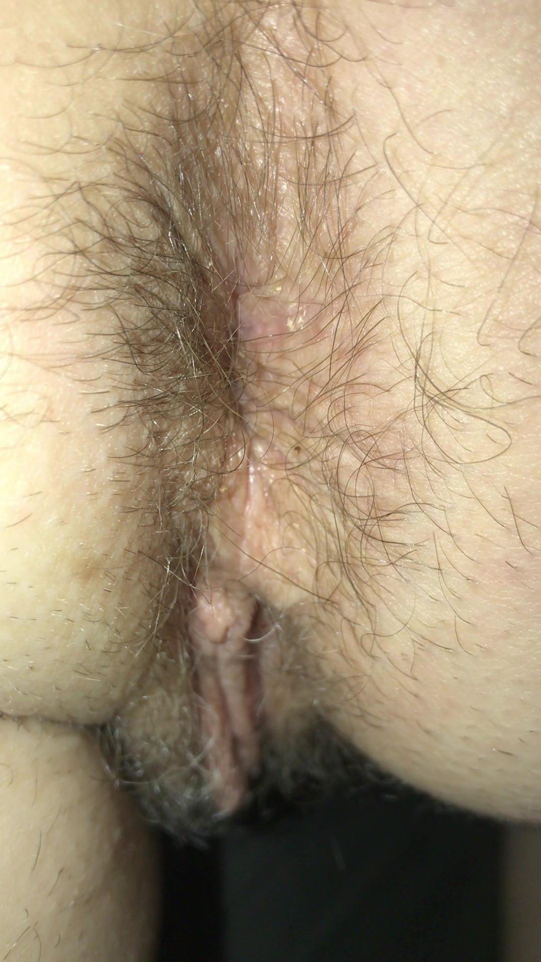 Hairy Milf Ass Close-Up Pt 2, Free Hairy Ass Milf Hd Porn F0-3953