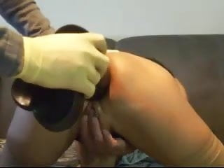 Anus caner - Mature plays gapes with her anus using huge objects - snc
