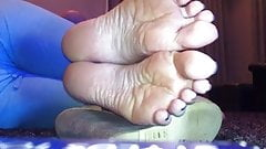 Wrinkled soles on my 55 inch TV