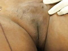 Plastic Surgery 9's Thumb