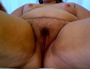 Neonatal volvulus and imperforate anus