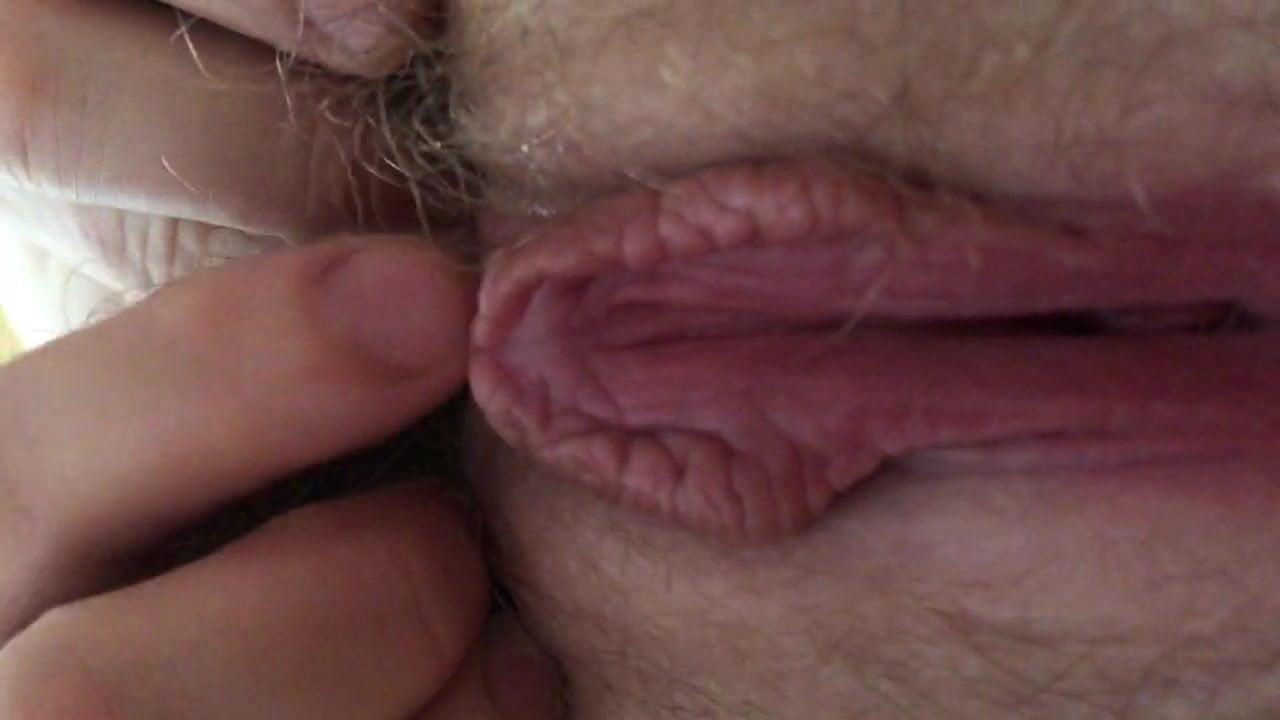 Vascetomy freeze sperm for testing