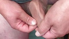 Foreskin with a 'waiters friend' tool