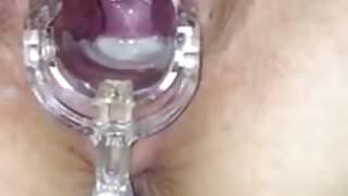 Orgasm Contractions w Speculum AND Cream Pie 0:55