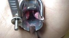 Creampie Speculum Video (Sex scene is Now Editing)
