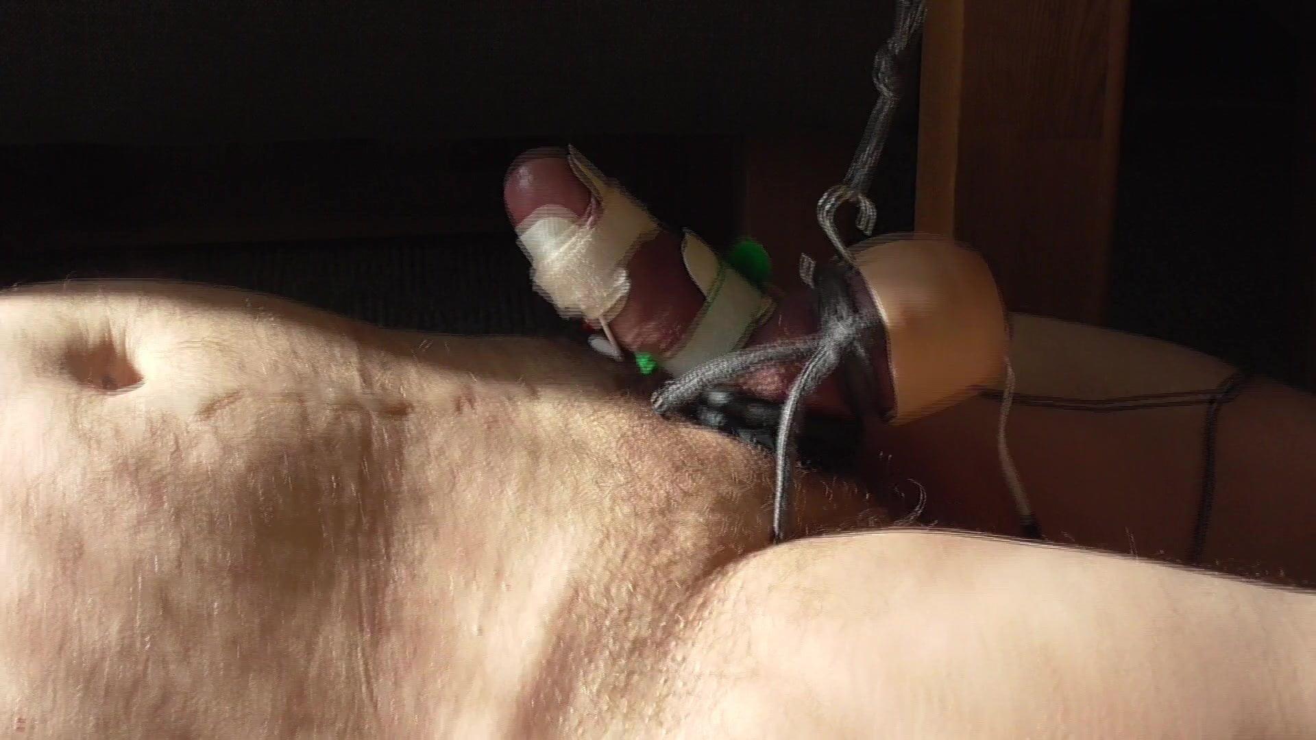 Electrostimulation sperm collection — pic 9