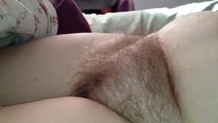Hairy pubic mounds