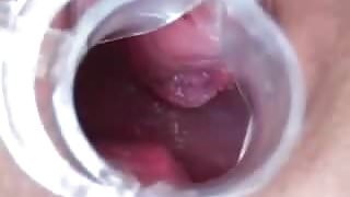 Wife has Speculum Orgasm Contractions 0:46