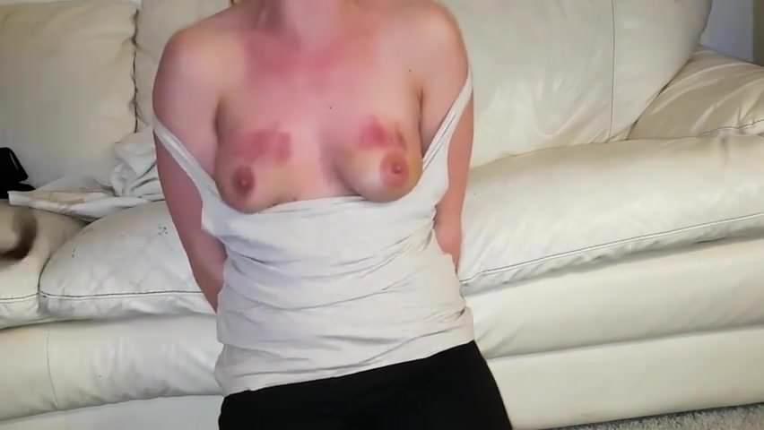 Naked wife severe bruising bdsm